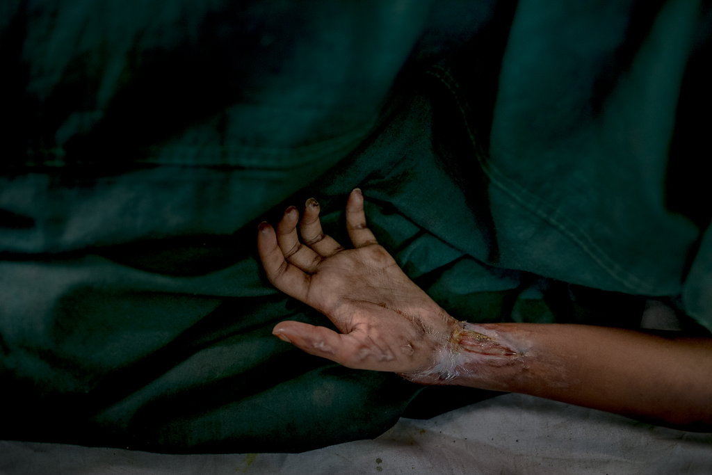 Gura Miya, 7 A wounded Rohingya boy admitted to the Cox's Bazar City Hospital who got badly injured in his hand as Myanmar military shot him during fleeing Myanmar.